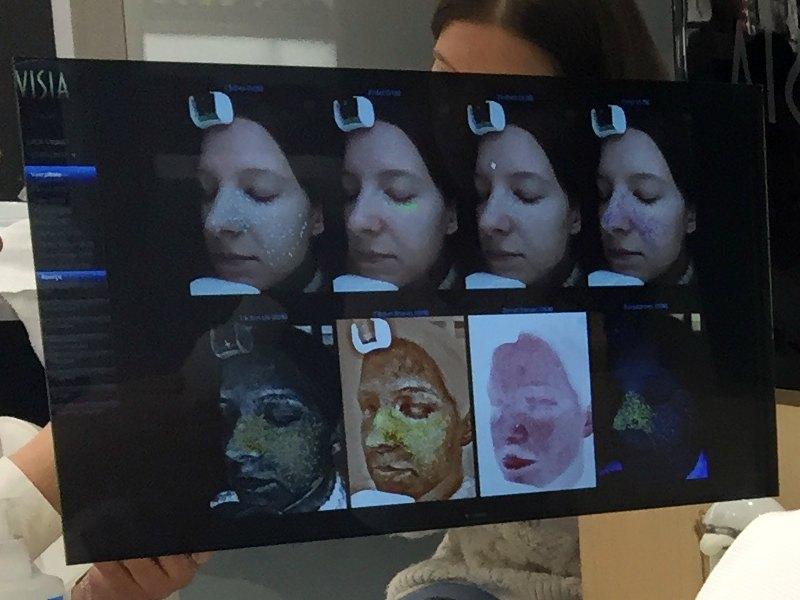 resultats diagnostic de peau ecran